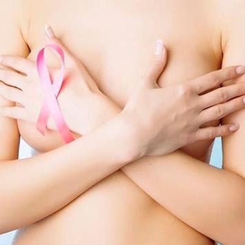 Exercícios físicos são aliados na recuperação de mulheres que já tiveram câncer de mama